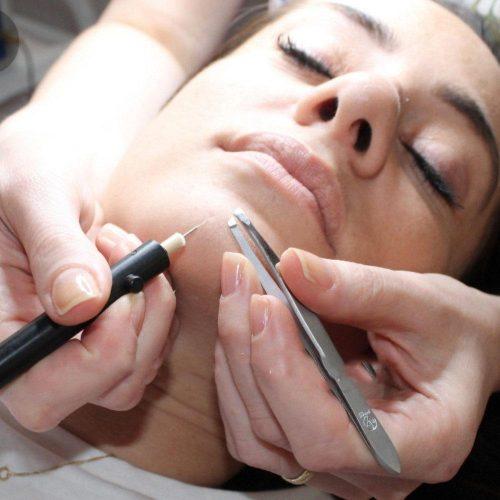טיפול אפילציה להסרת שיער מהפנים