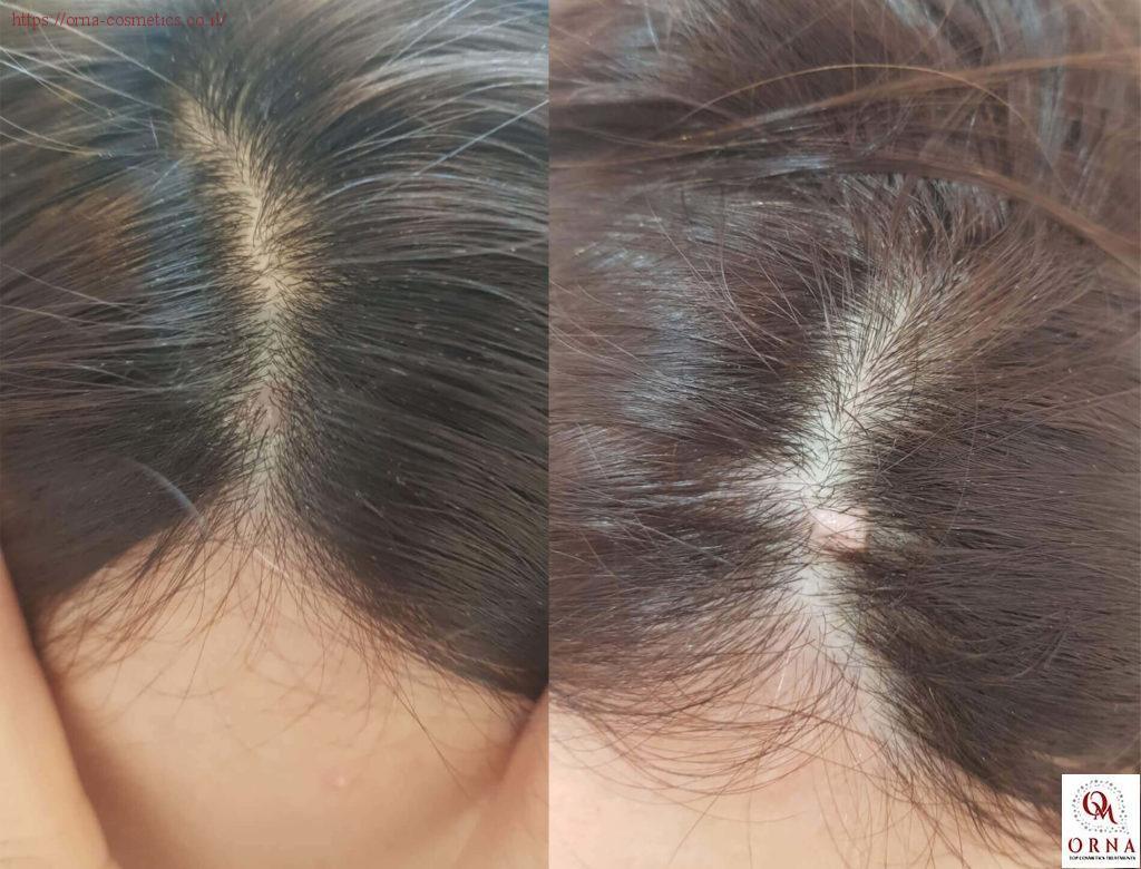 טיפול בנגעי עור לפני ואחרי אורנה משעלי